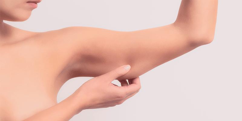 Flacidez corporal y nutricosmética